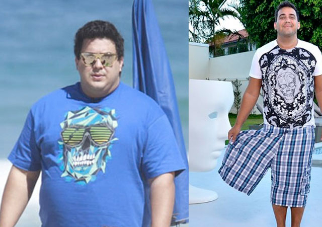cirurgia bariatria antes e depois