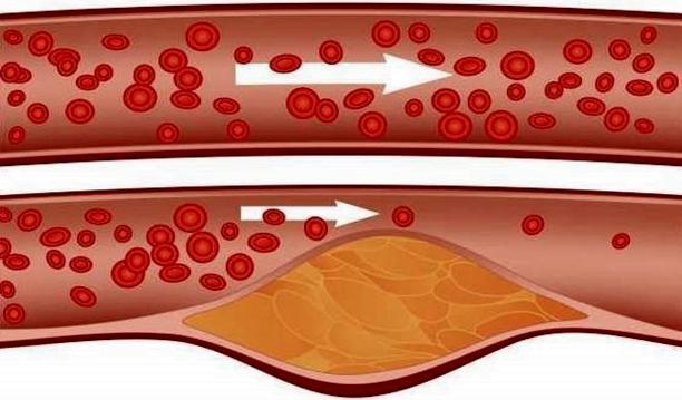 riscos do colesterol alto