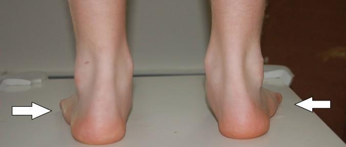 exercicio para tornozelo rotação