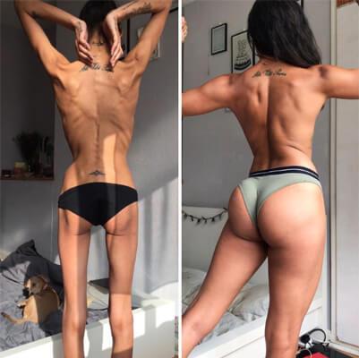 anorexia disturbio alimentar