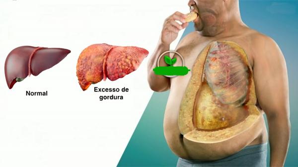 Dieta para colesterol alto e gordura no figado