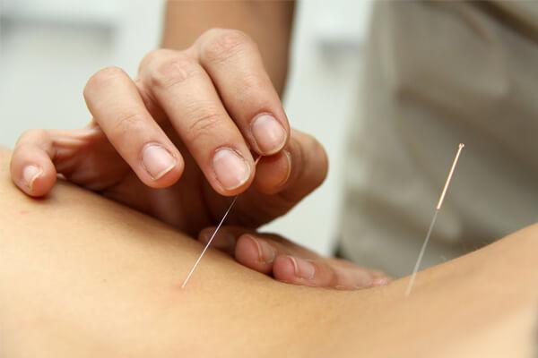 acupuntura principais pontos