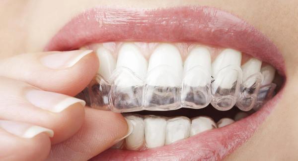 clareamento nos dentes como fazer