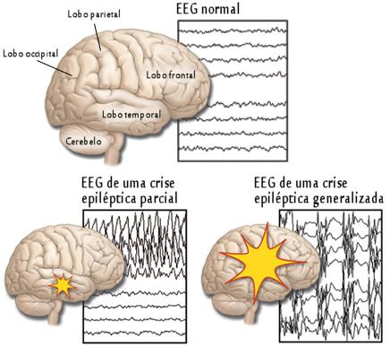 epilepsia crise