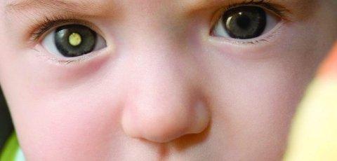 como cuidar dos olhos