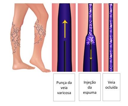tratamento de varizes com espuma