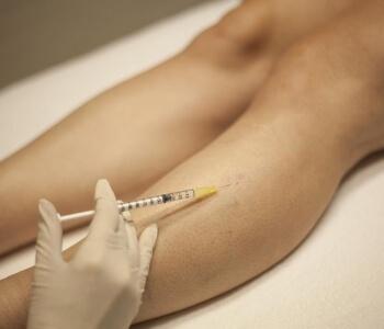 tratamento para varizes com espuma