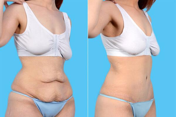 Abdominoplastia: Saiba Tudo Sobre a Cirurgia. Atrapalha a Gestação?