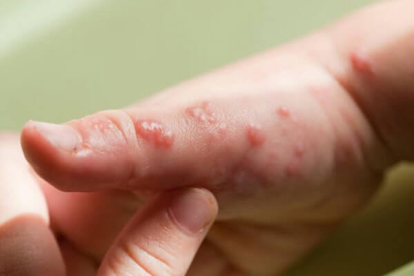 Herpes: O que é? Formas de Contágio, Como Prevenir e Tipos de Tratamento
