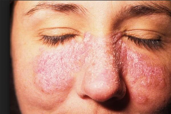 Diagnóstico de Lúpus: Como Funciona? Demora?