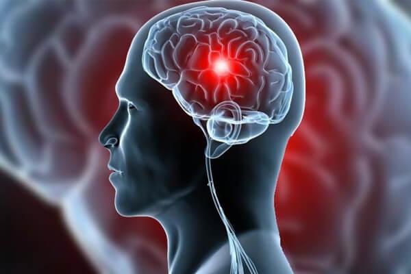 Prevenindo o AVC: 5 Atitudes para evitar o derrame cerebral