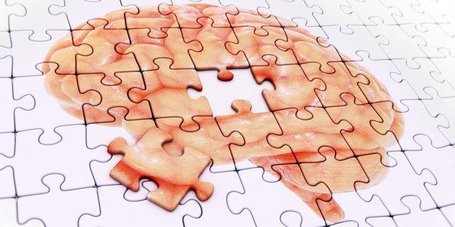 Causas do Alzheimer: veja quais são e primeiros sinais!