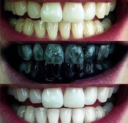 clareamento dental passo a passo