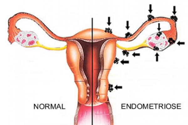 Endometriose: o que é? Causas, sintomas e tratamento