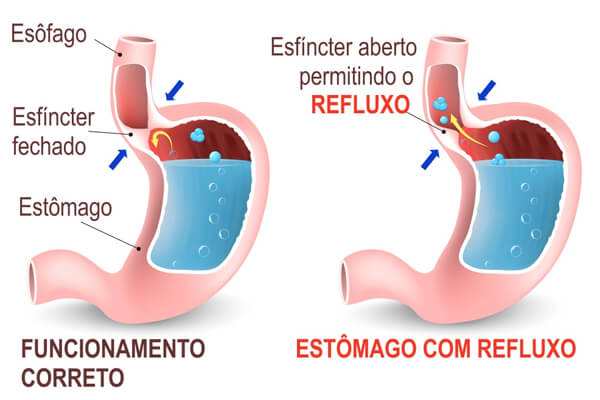 refluxo gastresofagico o que é