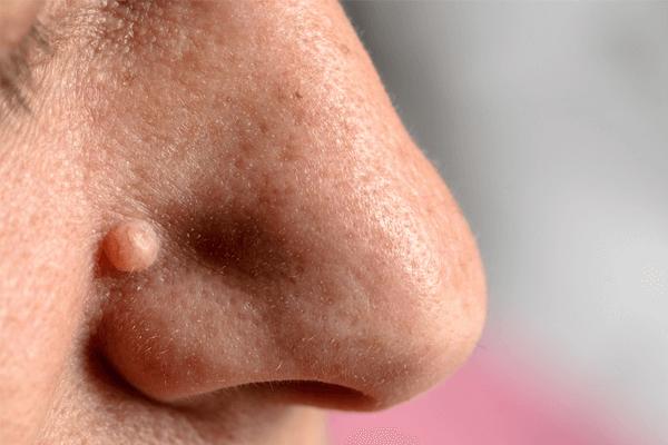 O que são verrugas, como remover, cuidados e tipos