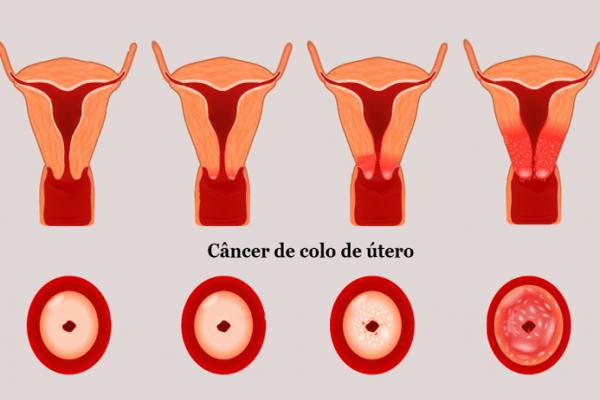 Câncer de colo de útero: causas, sintomas, tratamento e prevenção
