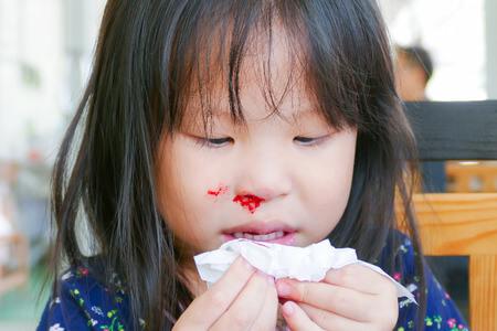 Causas de sangramento nasal