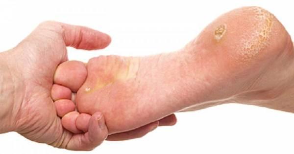 cuidados com os pés de-diabéticos