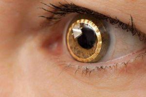 lente de contato colorida