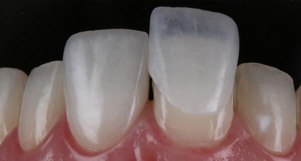 lente de contato para o dente