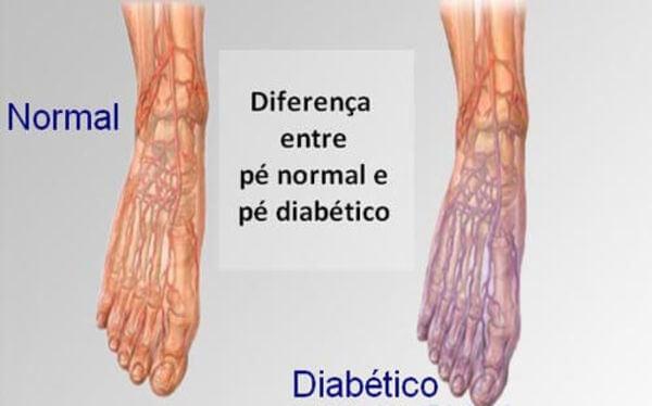 pé normal e pé diabético