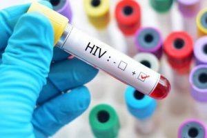 teste HIV