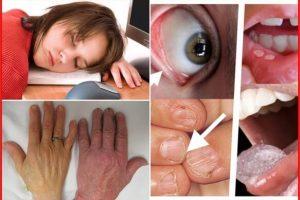 causas da anemia