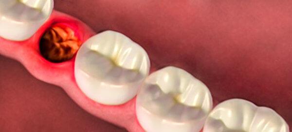 dente siso cicatrização