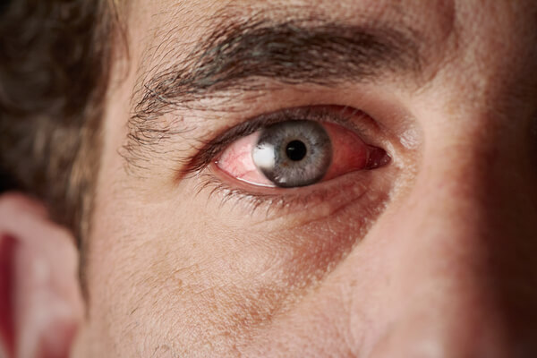 dor olhos