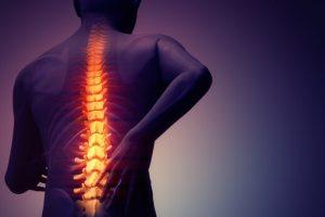 dores nas costas sintomas