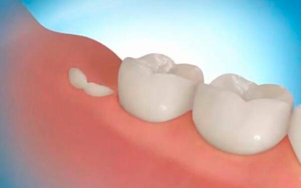 quando nasce o dente siso