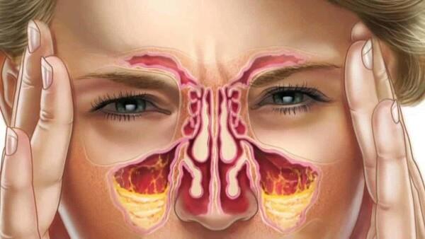Remédio caseiro nariz entupido2