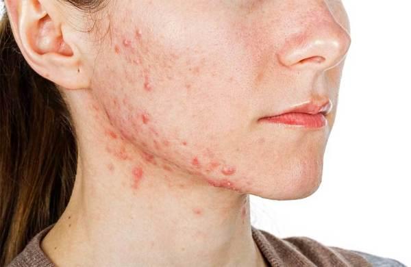 Tratamento caseiro para acne2